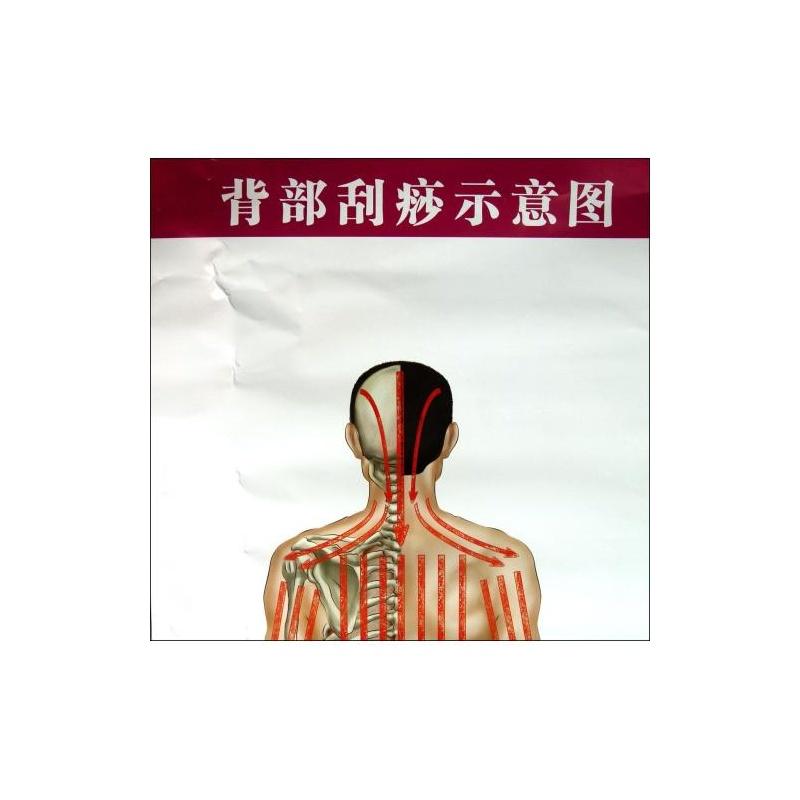 《背部刮痧示意图气管炎哮喘保健图解/常见病保健